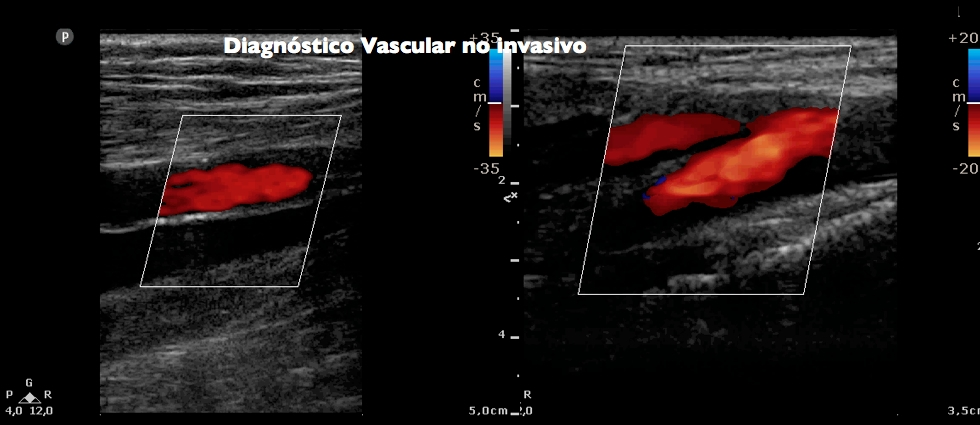 Diagnóstico Vascular no invasivo